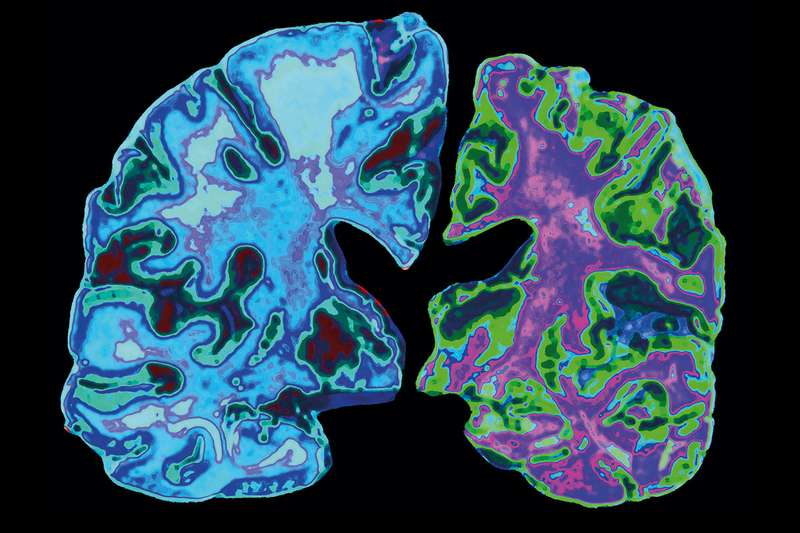 Article and Comment: We may finally know what causes Alzheimer's – and how to stop it